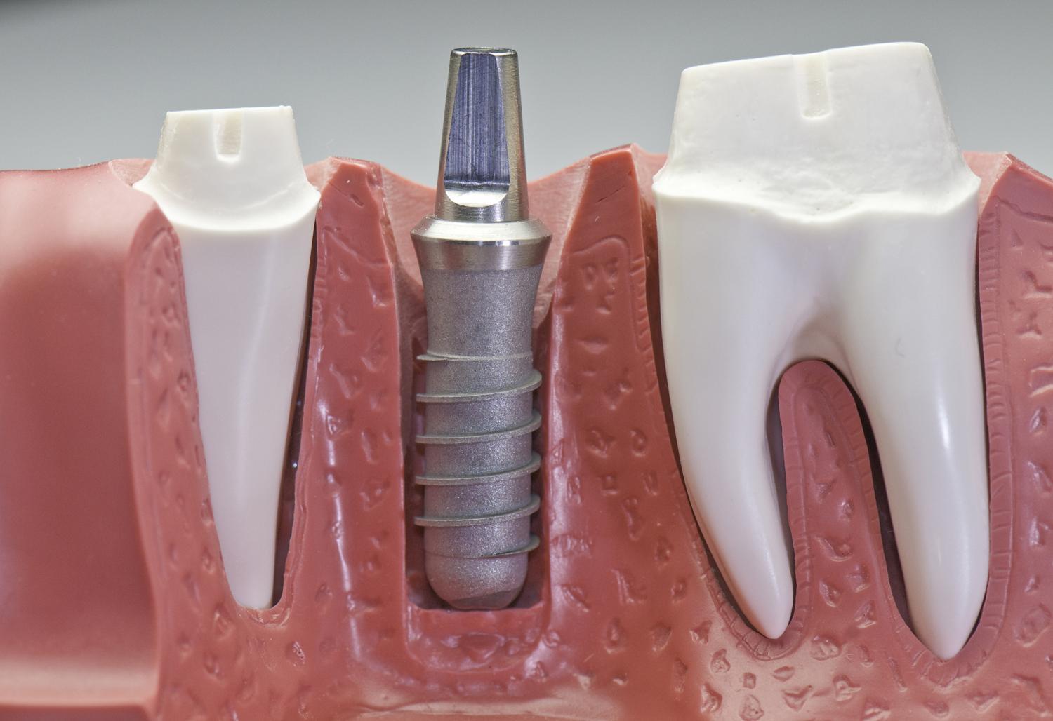 À quoi vous servira un implant dentaire?