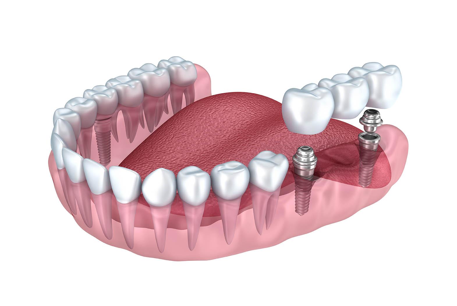 Implant dentaire Lyon : quels sont les inconvénients de cette technologie ?