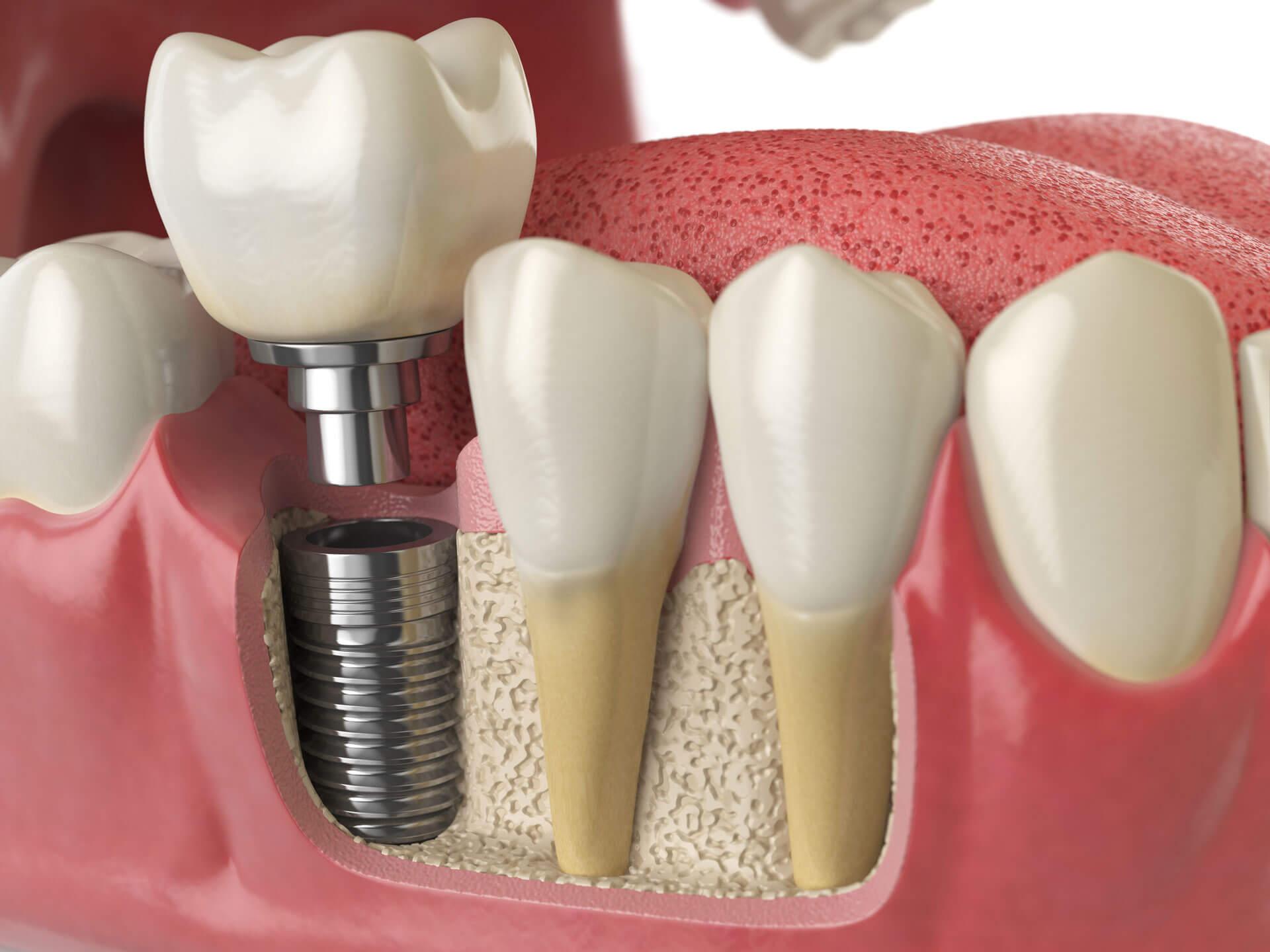 Implant dentaire : quel est son principal rôle ?